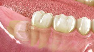 Cirugia Oral en Tenerife