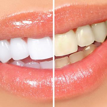 Clínica Dental para Blanqueamiento Dental en Tenerife