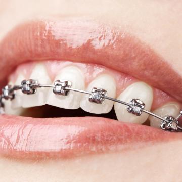 Clínica Dental con Brackets de baja fricción en Tenerife
