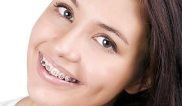 Dentista brackets metálicos