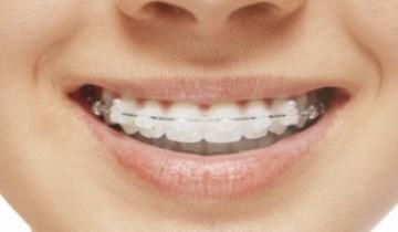 Dentista brackets estéticos
