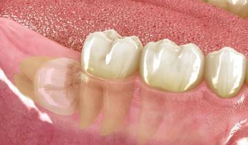 Dentista cirugía oral