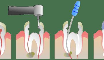 Dentista endodoncia