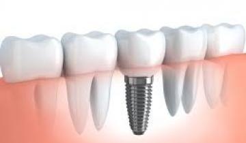 Dentista implantes dentales