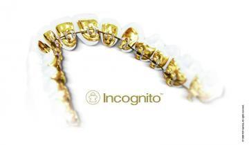 Dentista ortodoncia lingual