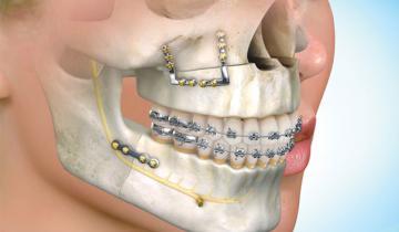 Dentista ortodoncia y cirugía ortognática
