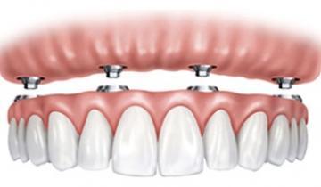 Dentista prótesis dental