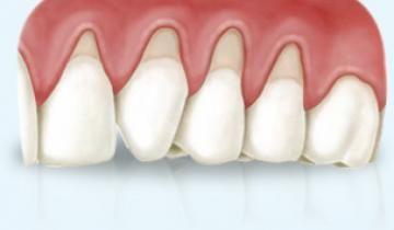Dentista tratamiento estético de encía