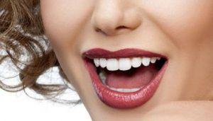 Estetica dental - Carillas dentales para corregir su mordida