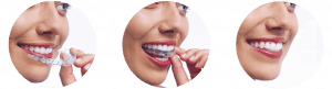 Ortodoncia Invisible en Tenerife - Cambio alineador cambio cada 15 dias