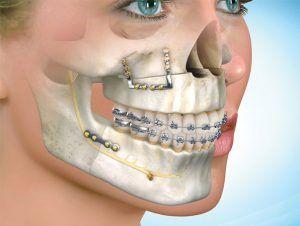 Ortodoncia y cirugia en Tenerife