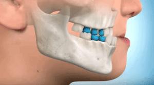 Ortopedia funcional estimulacion avance maxilar