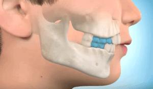 Ortopedia funcional estimular frenar crecimiento mandibular