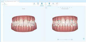 Plan tratamiento ortodoncia Invisible en Tenerife