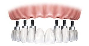 Protesis dental santa cruz