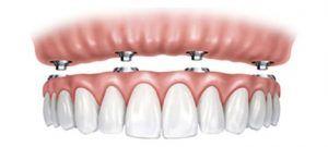 Protesis dental la laguna