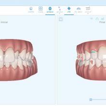 Simulación Virtual del Tratamiento Ortodoncia Invisible en Tenerife