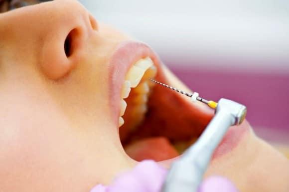 Sesiones de endodoncia en Tenerife