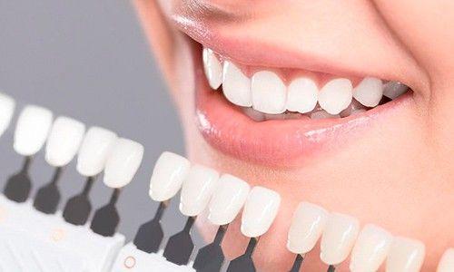 Blanqueamiento dental Tenerife - Toma de color con guía de color para registrar el color inicial.