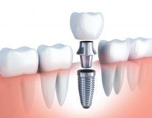 Preguntas frecuentes sobre implantes dentales en Tenerife