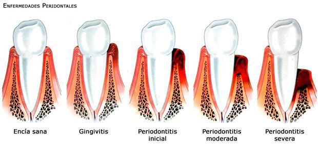Evolución de la Inflamación de encías a la periodontitis