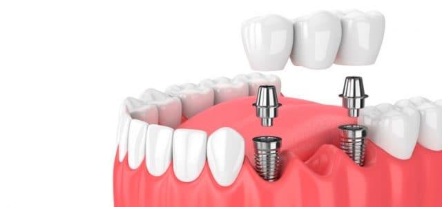 Implantes dentales en Tenerife