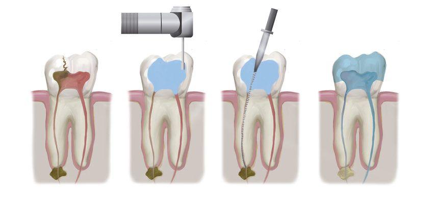 Tratamiento endodoncia en Tenerife